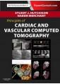Cardiovascular Medicine - Clinical & Internal Medicine - Medicine - Non Fiction - Books 52